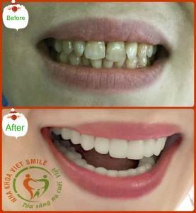 răng thẩm mỹ