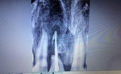 Đừng vất đi chiếc răng rơi ra do bị ngã hoặc lý do nào đó