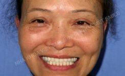 Toàn cảnh ca phục hình răng sứ , tái tạo lại thẩm mỹ khuôn mặt và chức năng ăn nhai