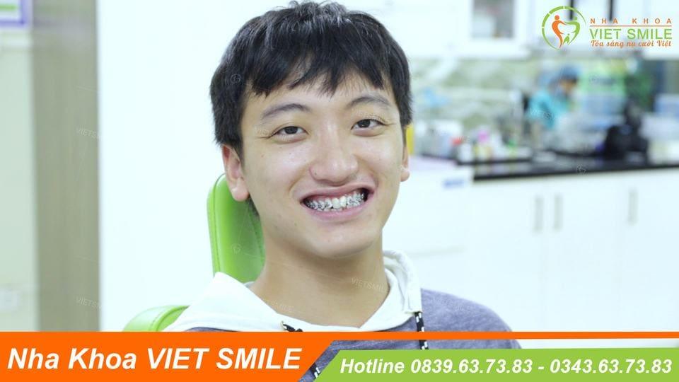 niềng răng 1 hàm giá bao nhiêu tiền?