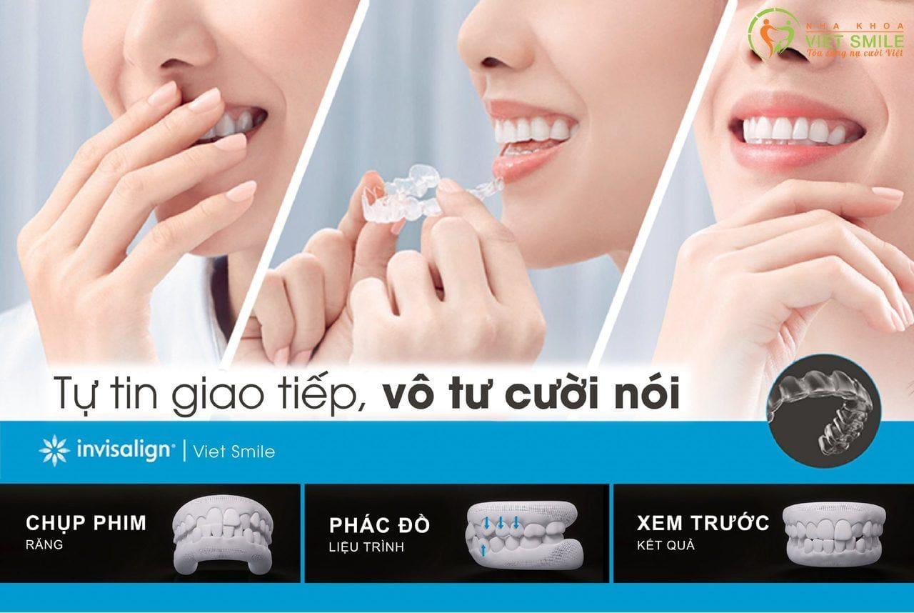 Niềng răng invisalign là gì? Vì sao niềng răng invisalign đắt