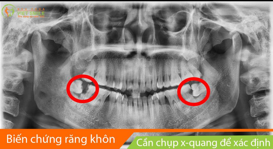 Rang khon moc lech