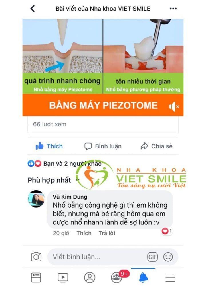 Vietsmile nho rang khon bang may piezotome