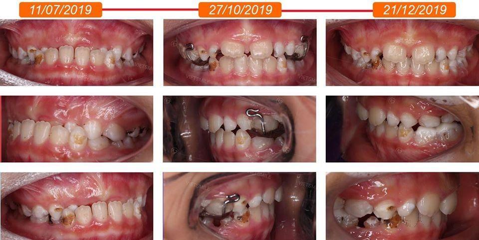Niềng răng móm khoảng bao lâu?