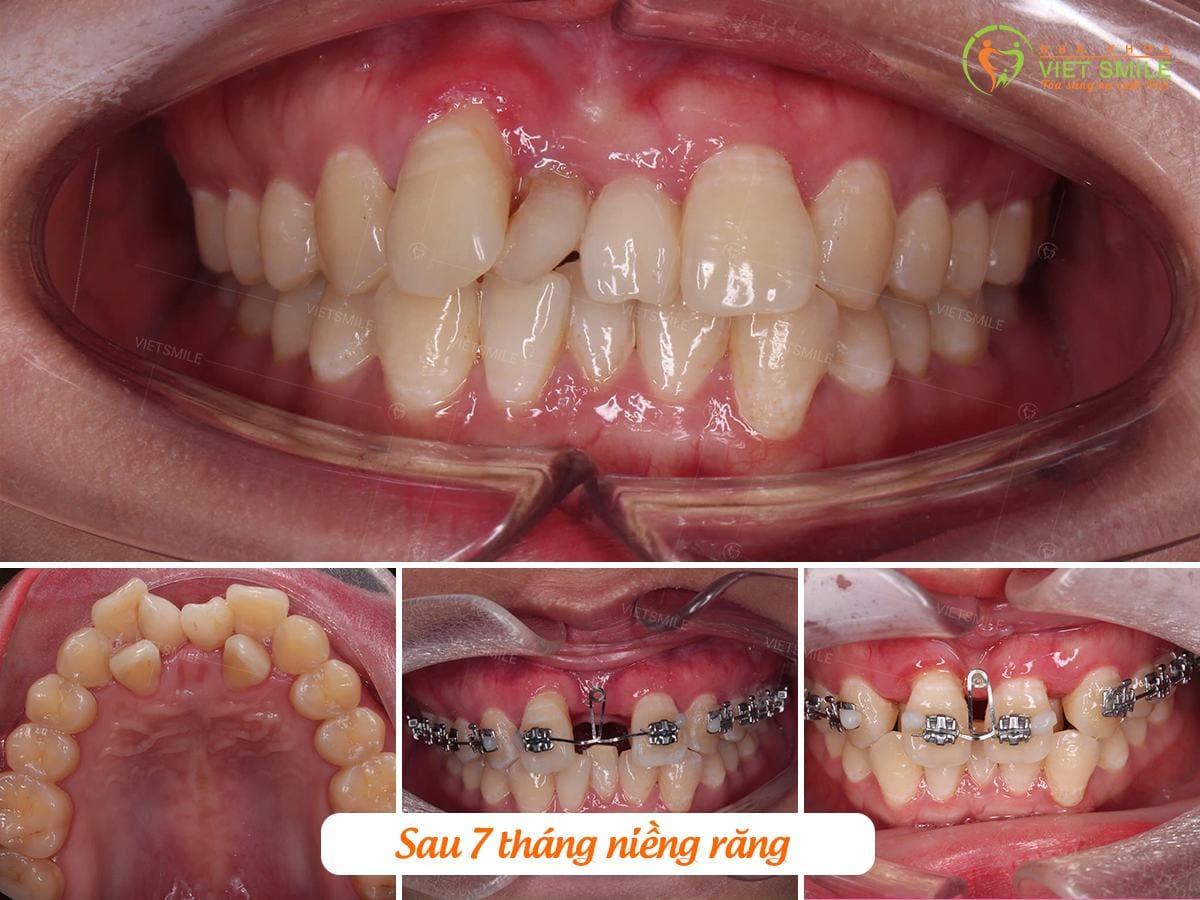 Tại nha khoa việt smile niềng răng mất bao lâu?