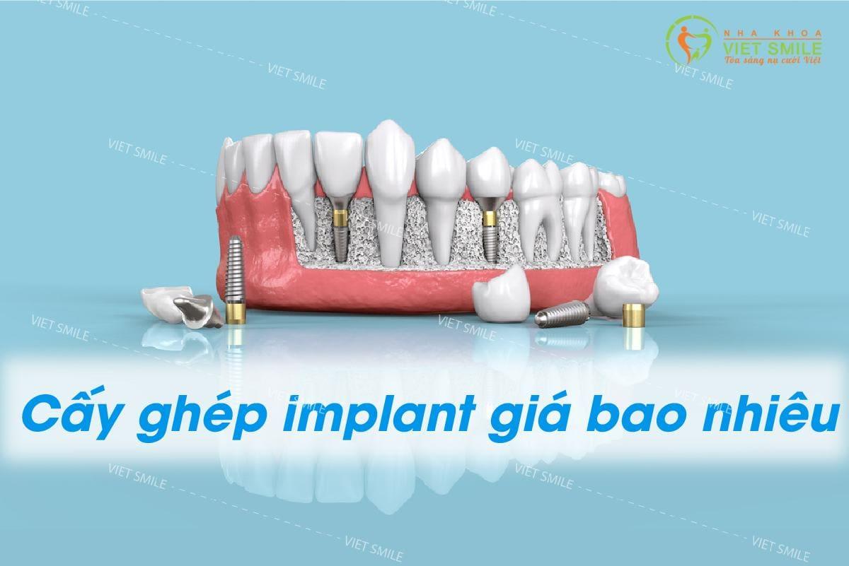 Trong rang gia implant