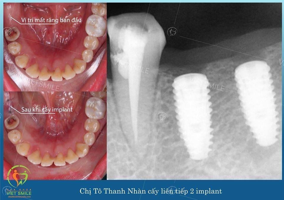 Tekka implant nha khoa