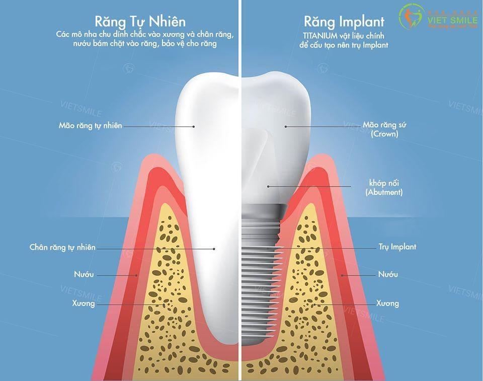 Trong rang implant