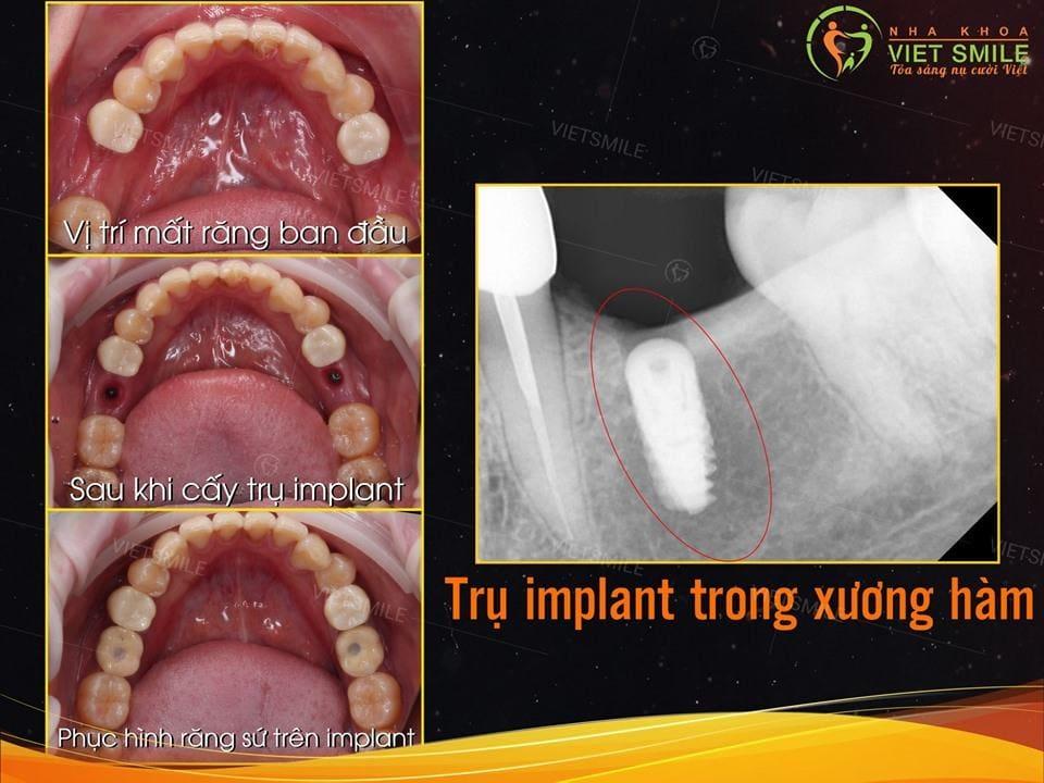 Vietsmile cay implant gia re