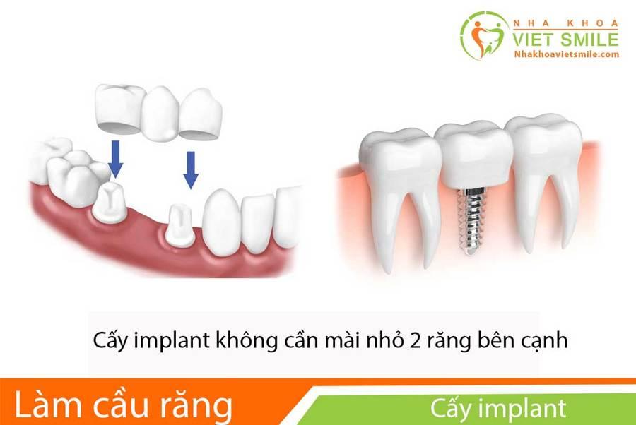 Cay ghep implant rang 7