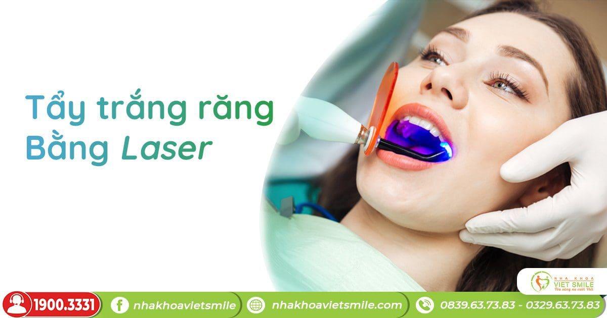 Ưu điểm vượt trội của công nghệ tẩy trắng laser whitening tại nha khoaviet smile