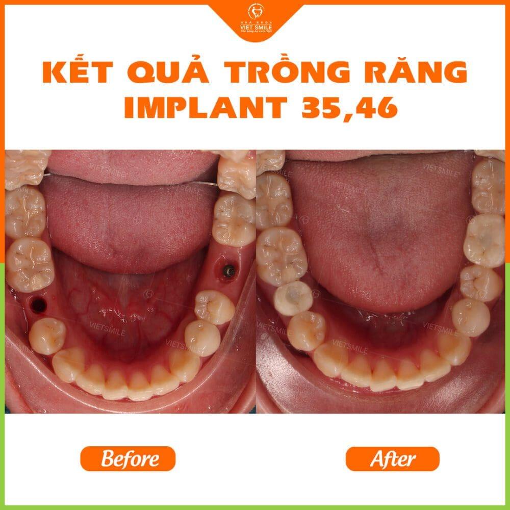 Cay ghep Implant Tekka