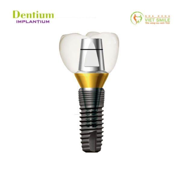 Vietsmile implant tium dentium