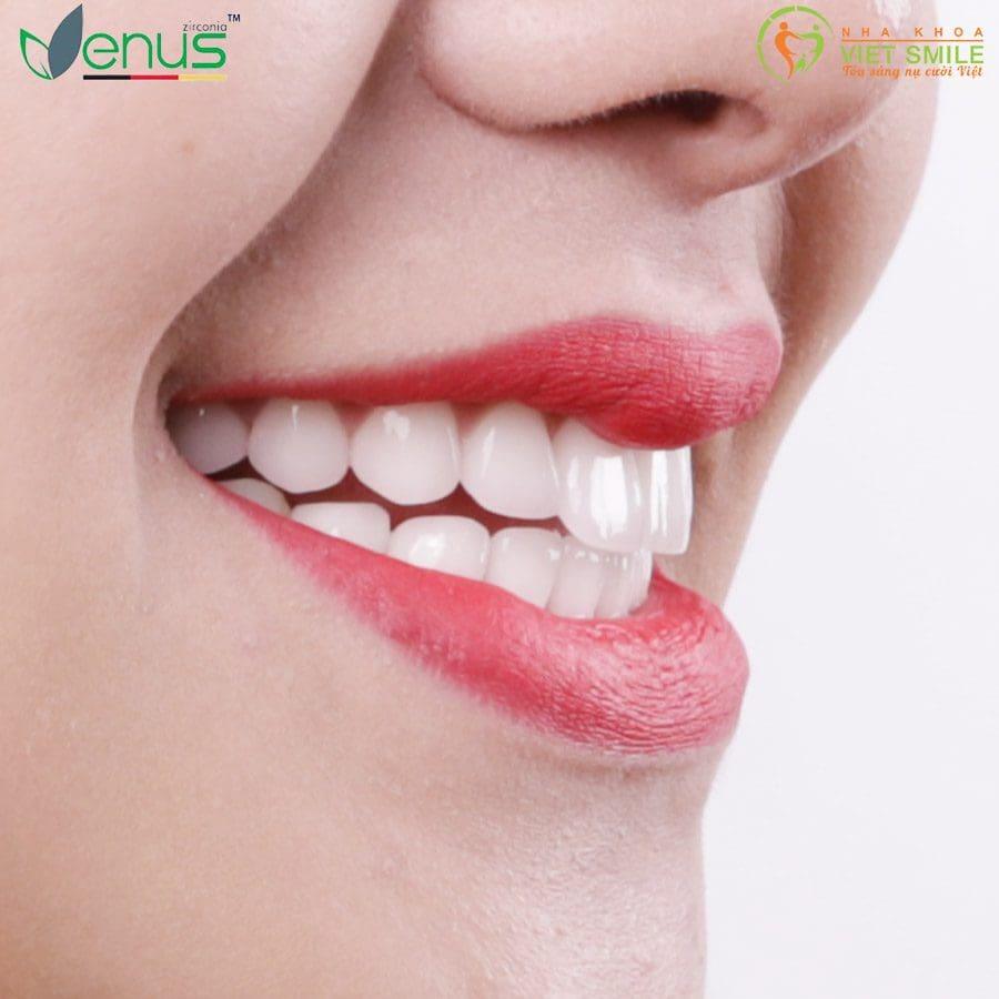 Răng sứ venus
