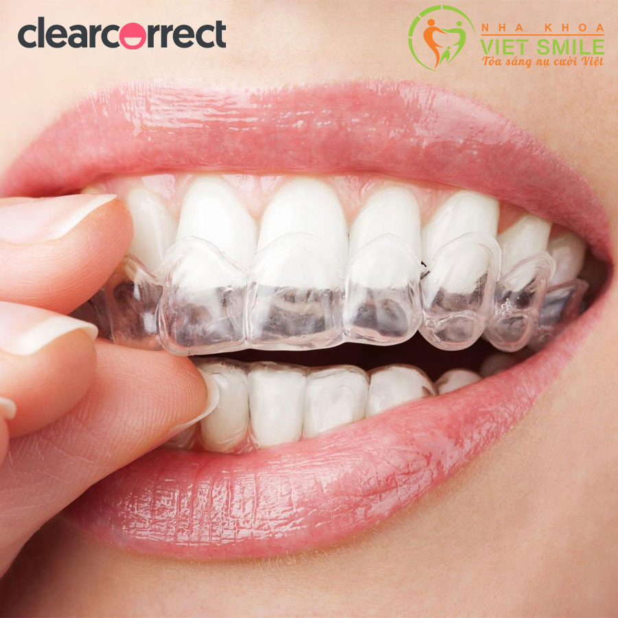 Niềng răng trong suốt clearcorrect