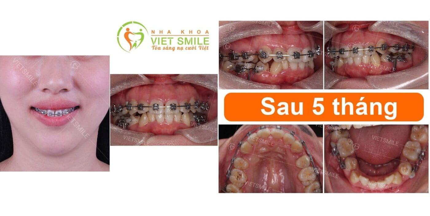 Sự khác biệt của nụ cười giữa trước và sau 5 tháng niềng răng