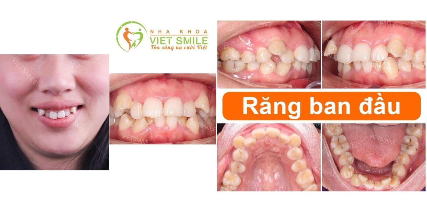 Tình trạng răng khấp khểnh ban đầu của khách hàng