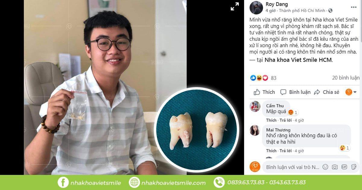 Nhổ răng khôn không đau
