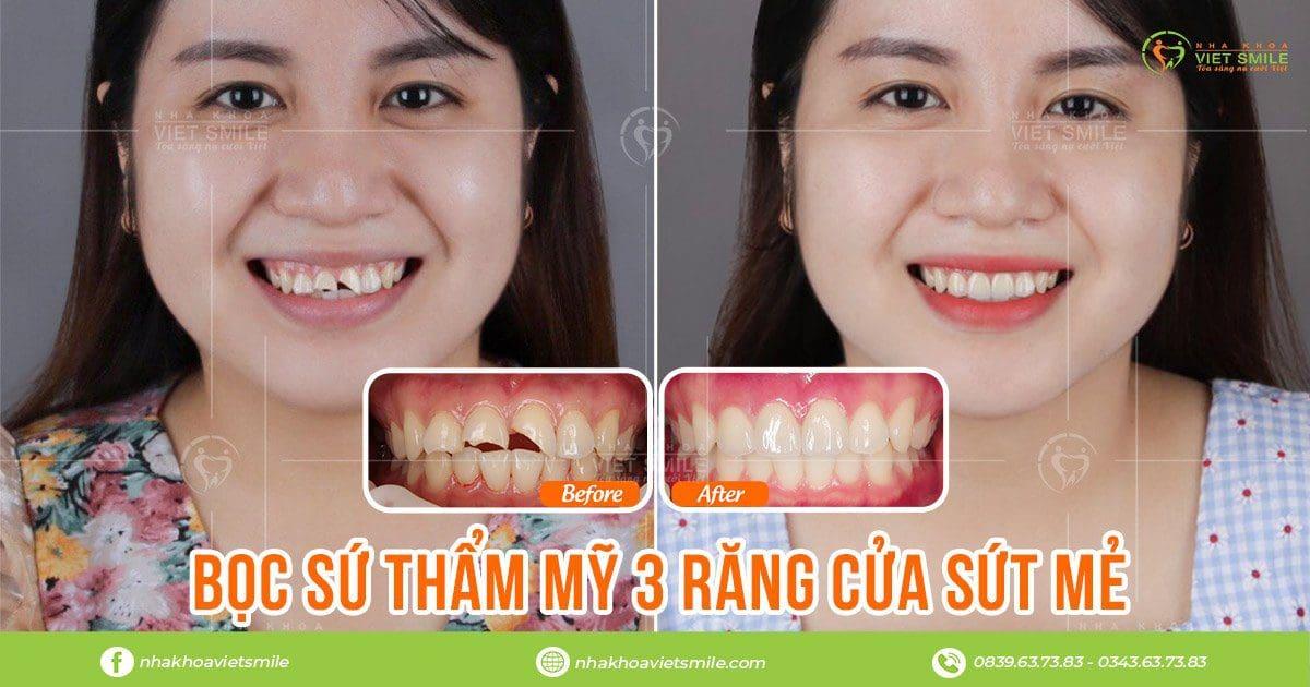 Khắc phục răng bị mẻ