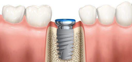 Dat tru implant