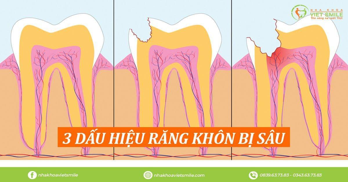 3 dấu hiệu răng khôn bị sâu
