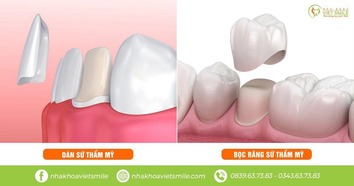 Bọc răng sứ và dán sứ veneer