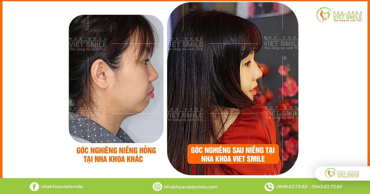 Nieng rang hong khac phuc ntn