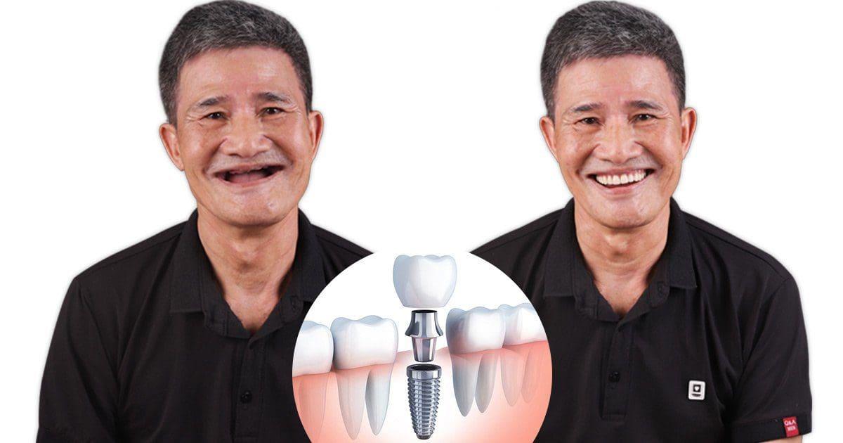 Dich vu implant 2