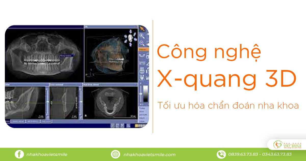Cong nghe xquang 3d
