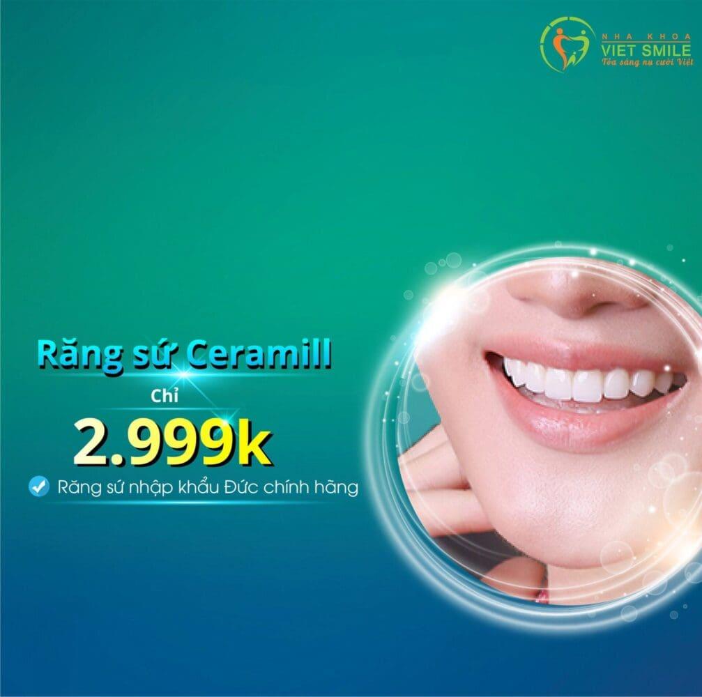 Bọc răng sứ 3