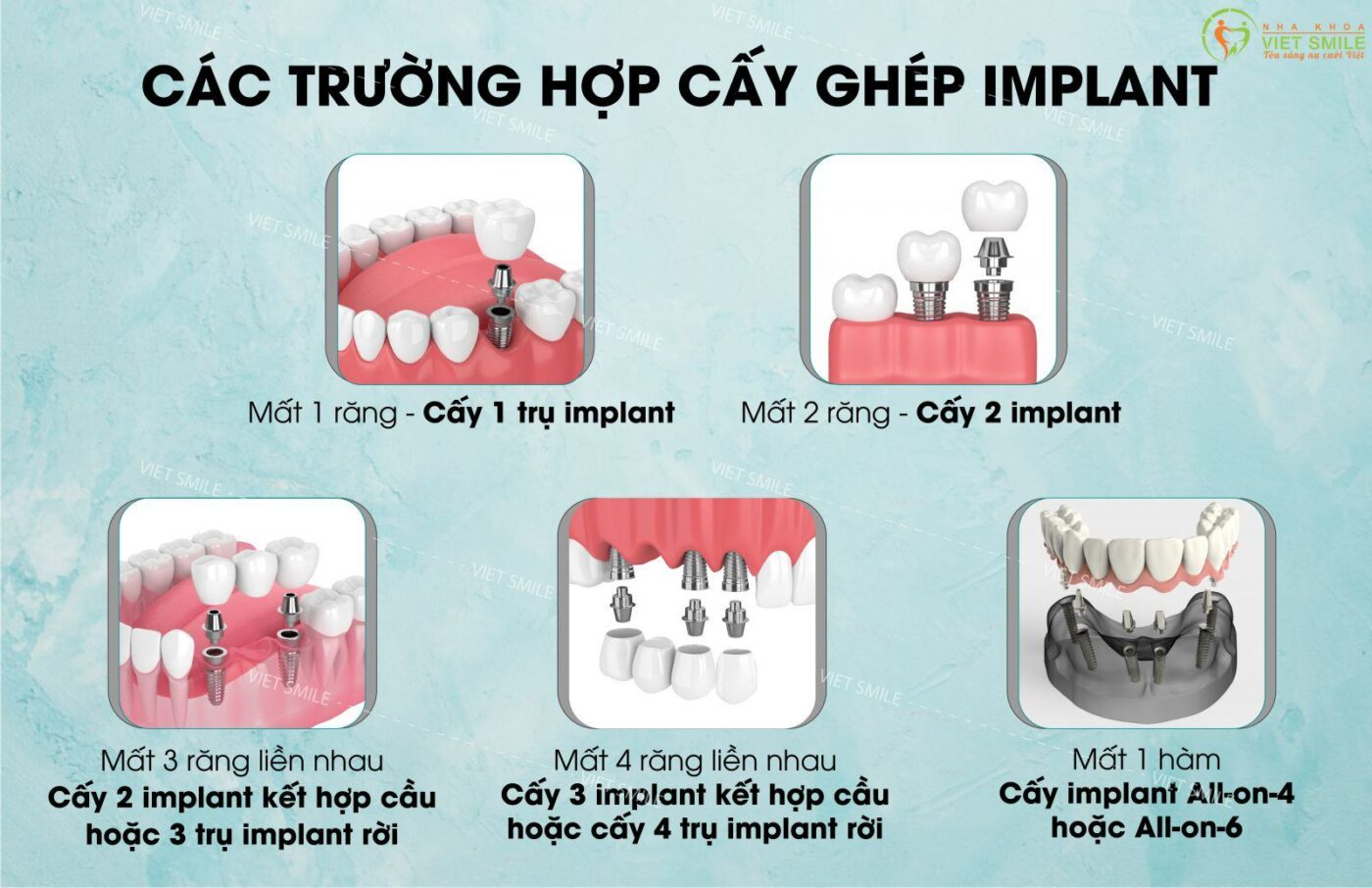 Cay ghep implant