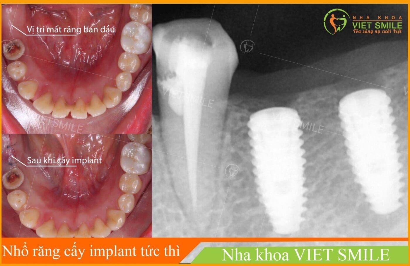 Cay ghep implant tuc thi