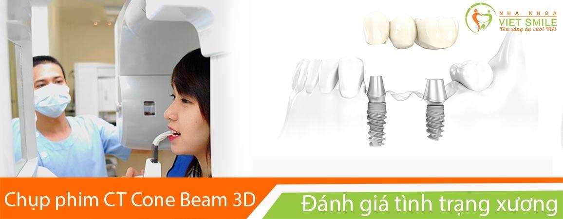 Cấy implant cho người mất răng